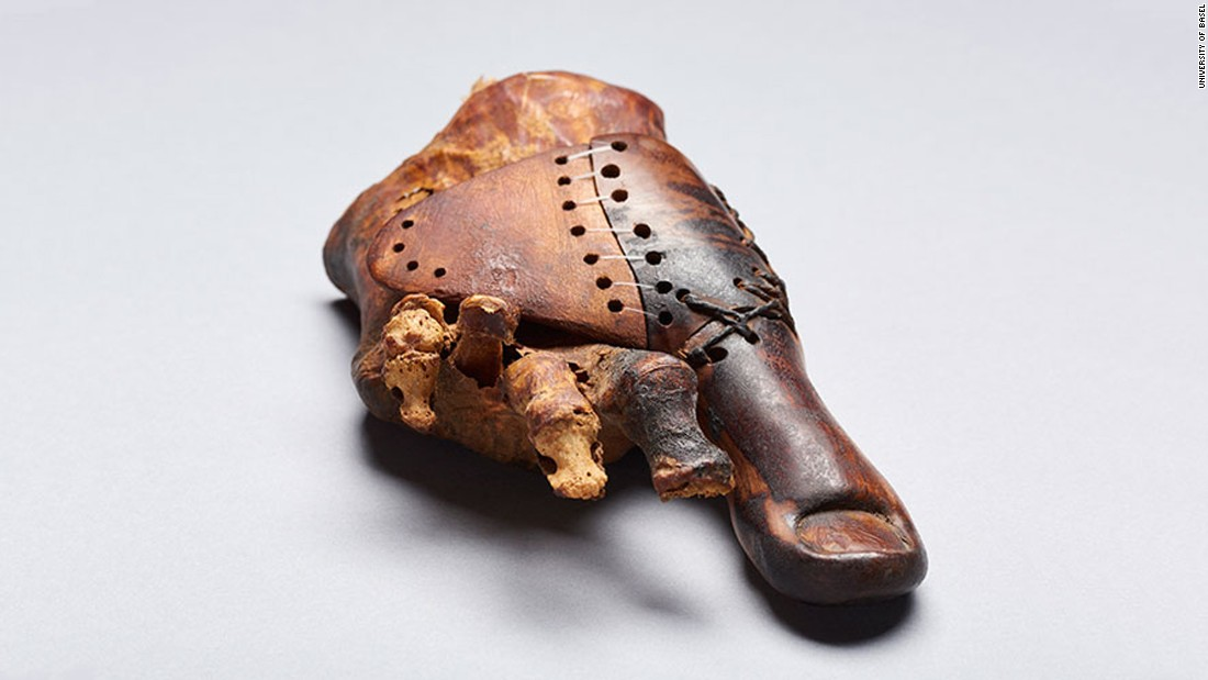 This prosthetic device was made for a priest's daughter who had to have her right big toe amputated 3,000 years ago. This surprisingly lifelike toe was made to look natural by a skilled artisan who wanted to maintain the aesthetic as well as mobility during the Early Iron Age. It was designed to be worn with sandals, the footwear of choice at the time.