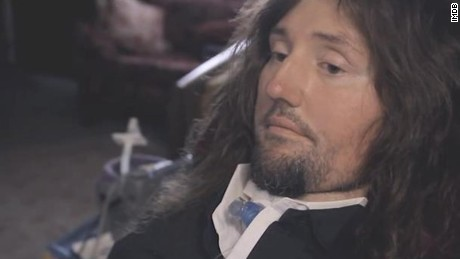 Musician with ALS faces next challenge: health care reform
