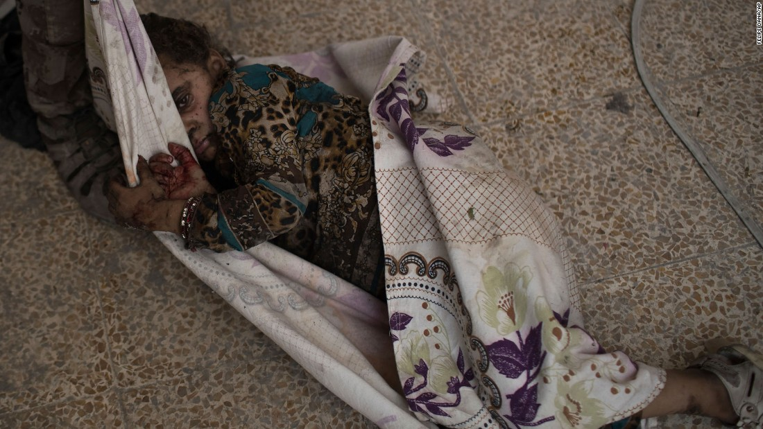 "This injured girl was found by Iraqi forces as they <a href=""http://www.cnn.com/2017/06/29/middleeast/iraq-mosul-fighting/index.html"" target=""_blank"">advanced against ISIS militants</a> in the Old City of Mosul, Iraq, on Monday, July 3. She was carried away for medical assistance. Iraq's military is engaged in fierce street-to-street fighting for the<a href=""http://www.cnn.com/2017/06/30/middleeast/iraq-mosul-fighting/index.html""> final few blocks </a>still under the terror group's control. The battle to reclaim Mosul, the last major ISIS stronghold in Iraq, has been underway since fall 2016."