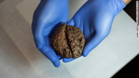 Fernando Serrulla, a forensic anthropologist of the Aranzadi Science Society, shows one of the 45 brains saponified of those killed by forces of the dictator Francisco Franco which were found in 2010 in a mass grave around the area known as La Pedraja