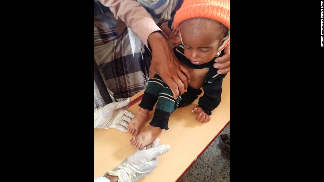 Twenty-month-old Musa is assessed for malnutrition in Yemen. He has since fully recovered with the help of International Medical Corps local First Responders.