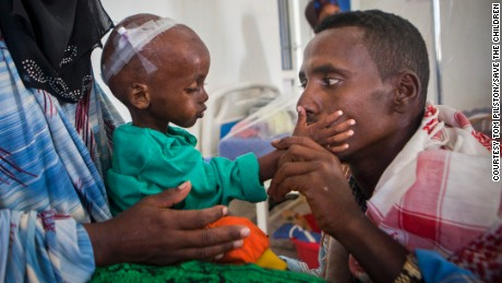 A 15-month old boy was brought to a Somalia hospital by his mother Laylo and father Mohamed, suffering from malnutrition and other related complications.