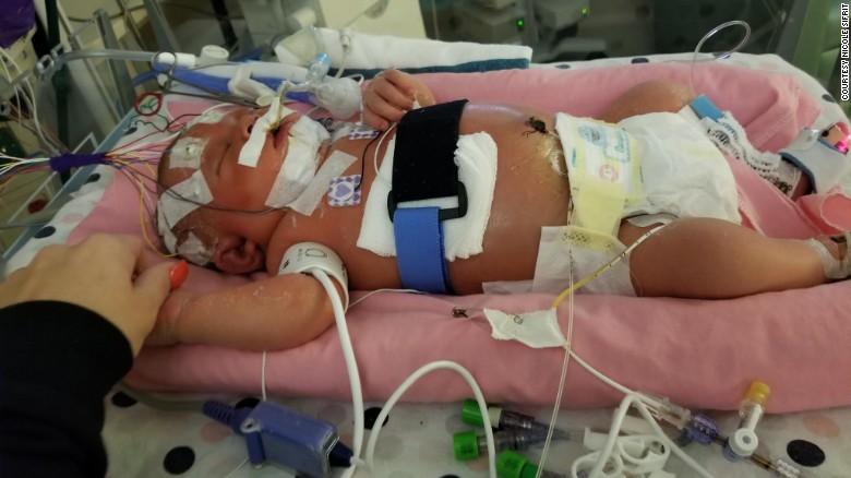 Muere bebé por meningitis contagiada por un beso