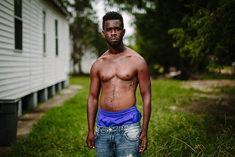 Congo Williams, 34, displays a gunshot wound in his left torso from a  September, 2014 shooting at the corner of Chef Menteur Highway and Dale Street in New Orleans East on June 27, 2017.