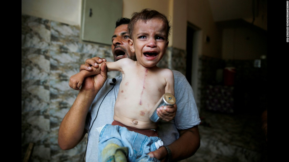 "A child, seen with an open heart surgery scar, cries while holding an empty tear gas canister believed to have been thrown by riot police on the Nile island of al-Warraq  -- south of Cairo -- on Sunday, July 16. <a href=""https://www.reuters.com/article/us-egypt-violence-idUSKBN1A10VS"" target=""_blank"">According to Reuters</a>, clashes broke out between police and residents ""when security forces attempted to demolish illegal buildings, the Ministry of Interior said in a statement."