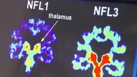 cte study 99 percent brains dead nfl players gupta lklv_00001325