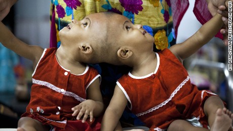 """Bangladeshi conjoined baby girl's stay a hospital at Dhaka. Delivered by caesarean at the PDC Clinic in Pabna they were born joined at the head. Mum Taslima Khatun Uno and husband Mohammed Rafiqul Islam came with the one-year-old twins were staying the hospital for a check-up, and will have to wait for a medical opinion on whether they will be able to undergo surgery to be separated.