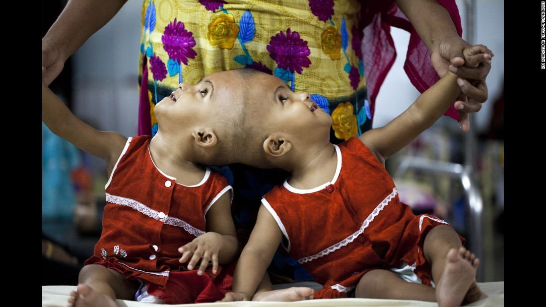 Conjoined twins Rabia and Rukia stay at a hospital in Dhaka, Bangladesh, on Tuesday, July 25. They were waiting on medical opinions over whether they would be separated by a surgical procedure.
