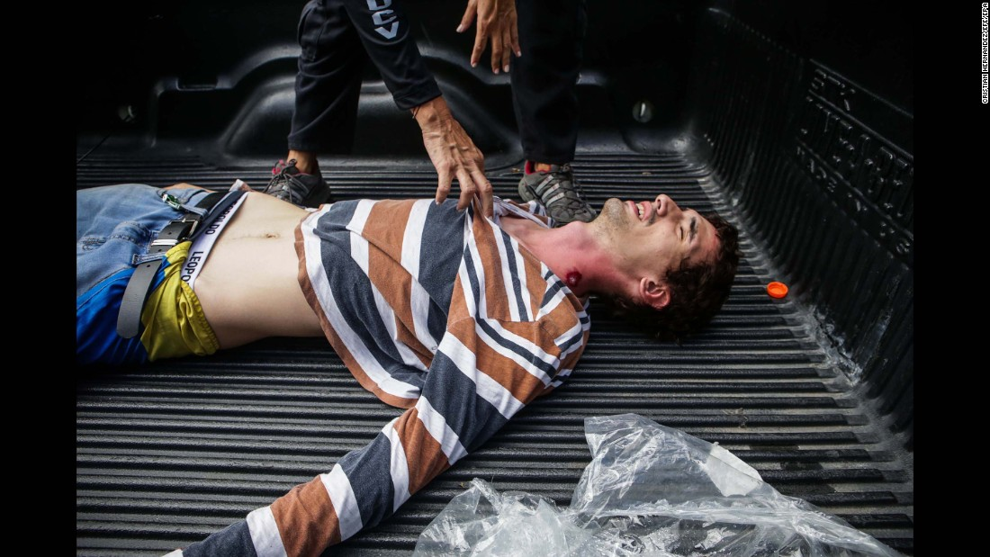A protester wounded by a pellet gun receives attention July 30 during a demonstration against the vote for a Constituent Assembly.