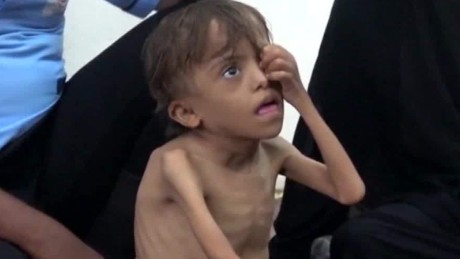 thousands of children at risk yemen kinkade pkg_00001103.jpg