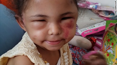 Viral photo of young girl an 'eye opener' on Yemen Crisis. Buthaina Muhammad Mansour is the only survivor in her family after an airstrike on her apartment building in Sanaa, Yemen's capital, on August 25., and has come to symbolize Yemen's plight.