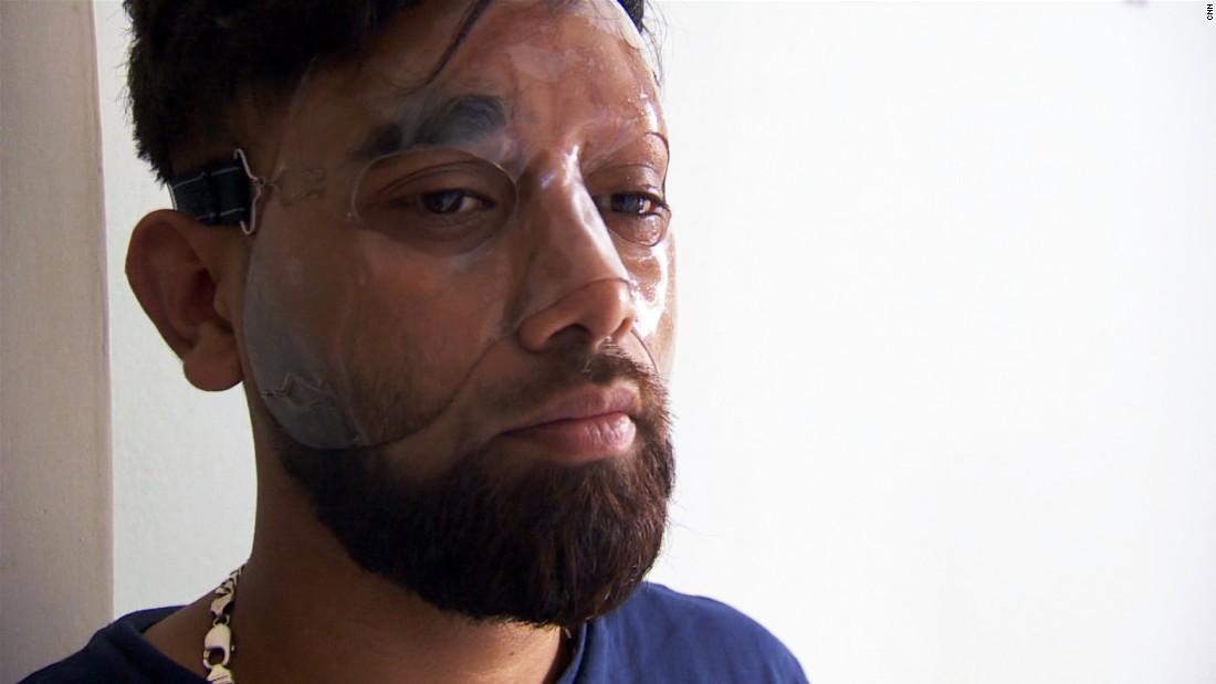 Torture In A Bottle London S Acid Attack Problem Cnn