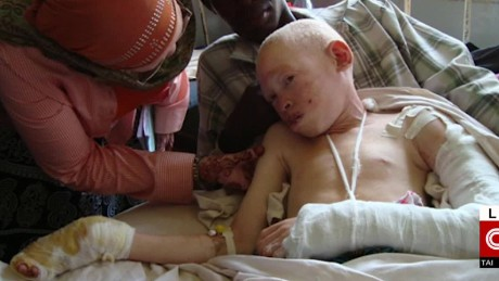 Hunting for humans: African albinos live in fear - CNN.com