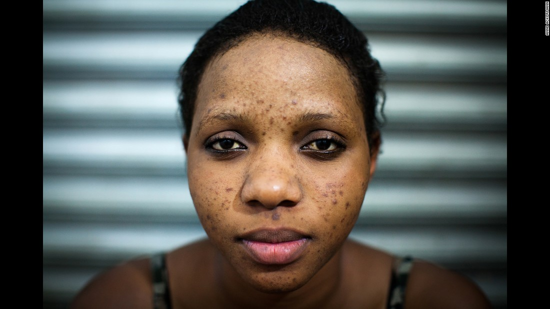 Light And Shadows Skin Bleaching In Uganda Cnn