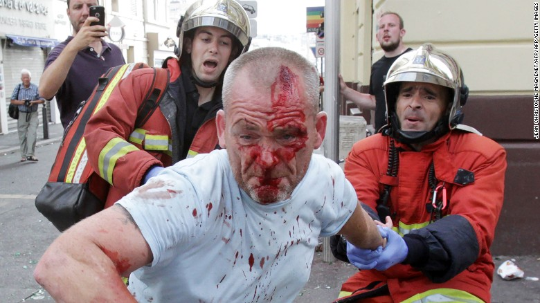 An English supporter injured after a street brawl is helped by a rescue squad ahead of the Euro 2016 football match between England and Russia,