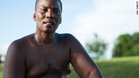 Paulette Leaphart was diagnosed with breast cancer in January 2014 but was unable to have reconstructive surgery because of a blood-clotting disorder.