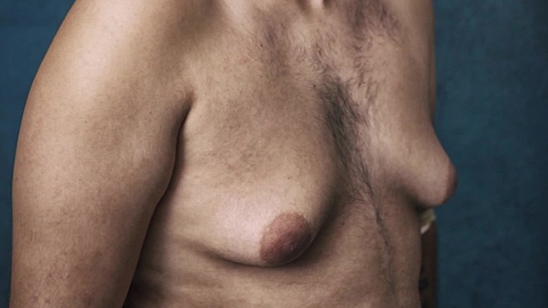 Breast Grow Large Male 64