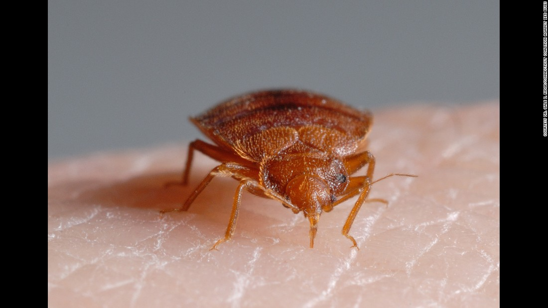Bedbug Pictures Bites Signs And Symptoms