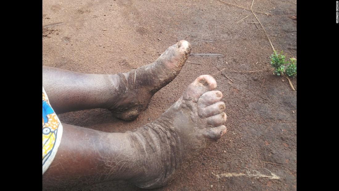 Volcanic soil behind mystery outbreak of elephantiasis - CNN  Volcanic soil b...